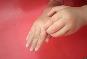 чешутся-пальцы-рук